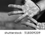 palms with calluses. blisters... | Shutterstock . vector #518309209