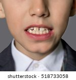 little boy with caries in the... | Shutterstock . vector #518733058