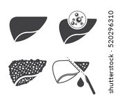 liver cancer icons set | Shutterstock .eps vector #520296310