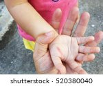 wound in the hand of a child... | Shutterstock . vector #520380040