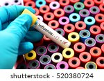 Blood sample positive with influenza virus