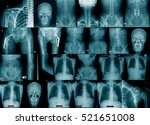 x ray collection process blue...   Shutterstock . vector #521651008