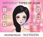 infographics of different type...   Shutterstock .eps vector #521702254