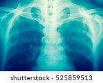 x ray  | Shutterstock . vector #525859513