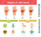 degree of skin burns. vector.... | Shutterstock .eps vector #526504138