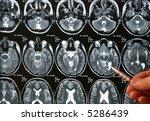a doctor examining  an roentgen ... | Shutterstock . vector #5286439