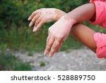 quadrichrome vitiligo is... | Shutterstock . vector #528889750