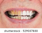 teeth before after | Shutterstock . vector #529037830