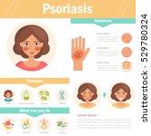 psoriasis. skin problems....   Shutterstock .eps vector #529780324