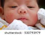 Small photo of Portrait of a newborn baby close-up. face baby rashes