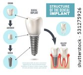 Dental Implant Structure...