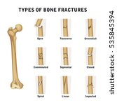 types of bone fractures | Shutterstock .eps vector #535845394