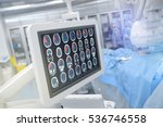 head scan on the monitor in... | Shutterstock . vector #536746558
