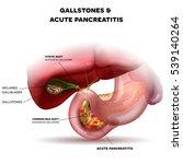 gallstones in the gallbladder...   Shutterstock . vector #539140264