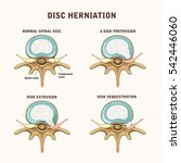 a herniated spinal disc  ... | Shutterstock .eps vector #542446060