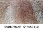 Brown Skin And Hairs Dog Close...