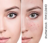 woman before and after treatment   Shutterstock . vector #544113643