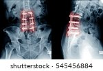 x ray image of lumbar spine... | Shutterstock . vector #545456884
