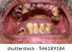 Small photo of Rotten bad teeth. Beard and mustache. Caries. Periodontal disease. Dental tartar