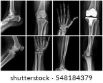 collage of many x rays. very... | Shutterstock . vector #548184379