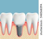 human teeth and dental implant. ... | Shutterstock . vector #548568394