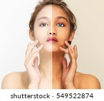 woman face with half sunburn... | Shutterstock . vector #549522874