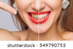 woman teeth before and after... | Shutterstock . vector #549790753