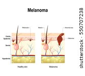 melanoma or skin cancer. this... | Shutterstock .eps vector #550707238