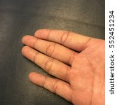 Small photo of Hand skin peeling due to an allergic reaction or Eczema