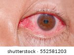 the eyes of people with...   Shutterstock . vector #552581203