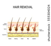 hair removal with wax  cream ... | Shutterstock .eps vector #555304024