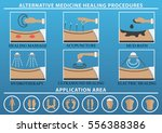 medical therapy procedures set. ... | Shutterstock .eps vector #556388386