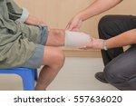 below knee stump bandaging   Shutterstock . vector #557636020