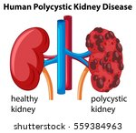 diagram showing human... | Shutterstock .eps vector #559384963