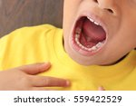 close up child caries | Shutterstock . vector #559422529