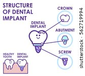 dental implant structure... | Shutterstock .eps vector #562719994