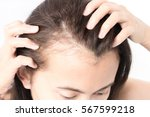 woman serious hair loss problem ... | Shutterstock . vector #567599218