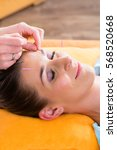 Small photo of Therapist setting acupuncture needles on woman in course of acupuncture treatment