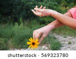 quadrichrome vitiligo is... | Shutterstock . vector #569323780