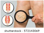 varicose veins on a female... | Shutterstock . vector #572143069
