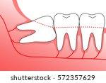 illustration of wisdom teeth... | Shutterstock .eps vector #572357629