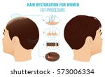 female hair loss treatment with ... | Shutterstock .eps vector #573006334