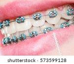 dentist and orthodontist... | Shutterstock . vector #573599128