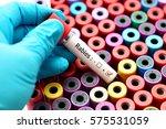 rabies positive | Shutterstock . vector #575531059