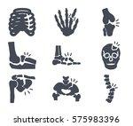 human broken bones silhouette... | Shutterstock .eps vector #575983396