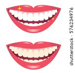 before and after whitening... | Shutterstock .eps vector #576234976