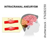 intracranial aneurysm. cerebral ... | Shutterstock .eps vector #576282250