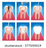 infographic stages of root... | Shutterstock .eps vector #577059019