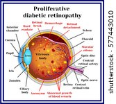 types of diabetic retinopathy ... | Shutterstock .eps vector #577443010