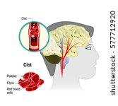 cerebral infarction. brain... | Shutterstock .eps vector #577712920